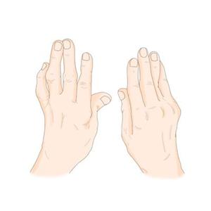 관절염,류마티스,질환,호흡기,위험