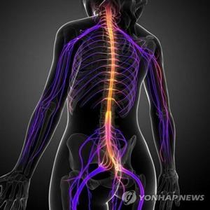 다발성,경화증,증상,지연,연구팀,여성