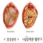 판막,수술,심장,협착증,대동맥판막,혈액,경우,환자,증상,퇴행성