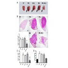 대식세포,종양,성분,펩타이드,개발,멜리틴