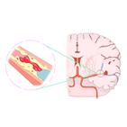 인공호흡기,코로나19,중환자,혈전,환자