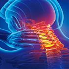 디스크,증상,통증,어깨,신경