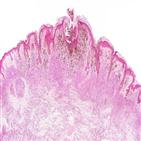 암세포,전이,스트레스,산화,림프절,세포