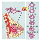 치료,방사선,소괴절제,수술,유방암,연구팀