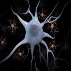 수면,알츠하이머병,연구,밀로이드,베타