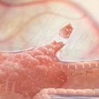 종양,산소,전이암,암세포,부위