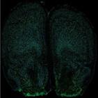 행동,-17,생쥐,세포,면역세포,뇌수막,면역계