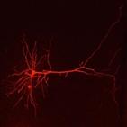 염증,신경,통증,뉴런