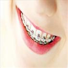 치아,부정교합,공간,배열,방법,잇몸