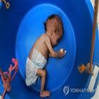 예멘,영양실조,유엔,어린이