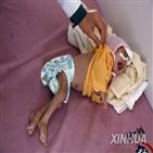 예멘,어린이,내전,영양실조