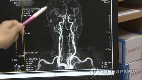 """치매 치료 새로운 길 열리나…""""접속초음파로 혈뇌장벽 개방 가능"""""""