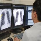 폐암,인공지능,흉부,서울대병원,활용
