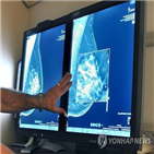 유방,유방암,검사