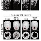 골다공증,파골세포,연구팀