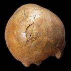 두개골,골절,화석,몽둥이,살인