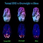 혈류량,비만,연구팀,체중