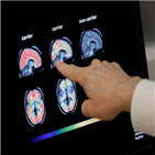 바이오젠,알츠하이머,주가,신약,치매