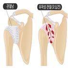 회전근개파열,오십견,어깨,파열,통증,진단