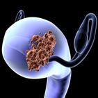 자궁내막암,위험,임신,연구팀,감소