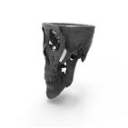 환자,이지메이드,프린팅,3D,광대뼈,소재,만족도,확인