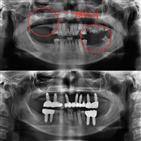 치아,치료,충치,물론,공포