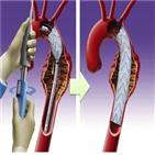 혈관,스텐트,동맥류