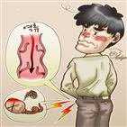 정계정맥,혈관,남성,고환,증상