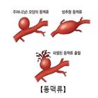 항생제,대동맥,플루오로퀴놀론,처방,위험