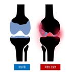 퇴행성관절염,무릎,여성,연골,경우,통증,운동