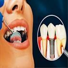 임플란트,치아,발생,관리,잇몸