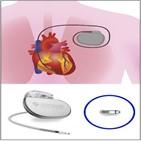 심박동기,심장,무선,삽입,부정맥