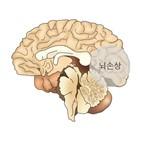 뇌졸중,위험,연구팀,사실,연구