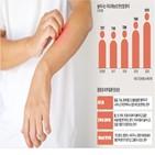 여드름,피부염,한선염,화농성,지루성,증상,피지,피부,염증,치료