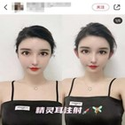 수술,얼굴,엘프귀,중국,하나
